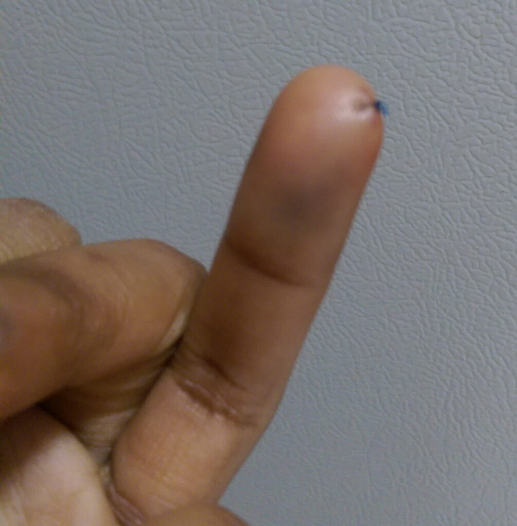 A finger with a single stitch.